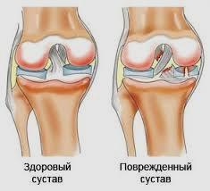 Хруст суставов что это такое воспаление коленного сустава как называется